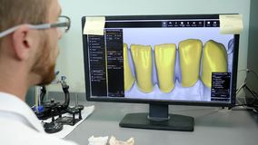Digital modeling of dentures, laboratory worker develops model of jaw on computer. At dental clinic stock video footage