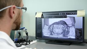 Digital modeling of teeth, male into 3D eyeglasses in front monitor of computer and looks jaw bones in video. At work close-up stock video footage