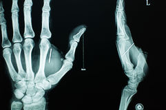 Digital Radiography. Of hands,black background Royalty Free Stock Photos