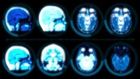 Digital MRI Scan Data of Human Brain