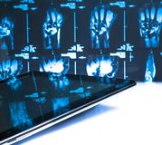Digital tablet pc in laboratory on x-ray images Royalty Free Stock Photography