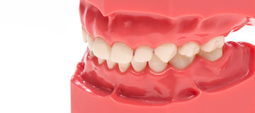 Dilatation of teeth, dentition Royalty Free Stock Images