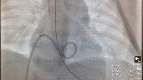 Dilatazione del pallone della valvola dell'arteria polmonare stock footage