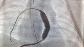 Dilatazione del pallone della valvola dell'arteria polmonare archivi video