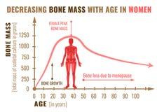 Diminuição da massa do osso ilustração royalty free