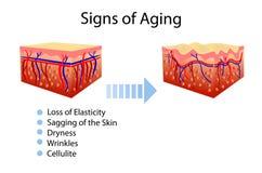 Dirigez le diagramme avec les signes du vieillissement, deux types de peau, pour les illustrations cosmetological et de soins de  illustration stock