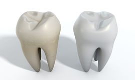 Dirty Clean Tooth Comparison Royalty Free Stock Image