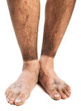 Dirty feet Stock Photos