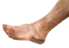 Dirty foot Stock Image