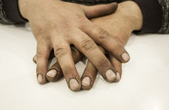 Dirty man hands Stock Images