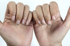 Free Dirty Nails, Dirty With Dirt Lodged In The Nails Royalty Free Stock Photography - 102139777