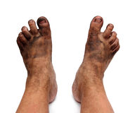 Dirty unhygienic foots Royalty Free Stock Photo