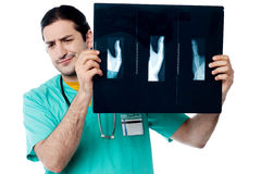 Disappointed surgeon after seeing x-ray report Stock Image