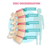 Disc degeneration flat illustration vector diagram with condition exampes - bulging, hernoated, degenerative and thinning disc. Ed. Ucational medical information vector illustration