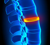 Disc Degeneration - Spine problem. Human anatomy Disc Degeneration - Spine problem stock illustration