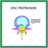 Disc protrusion. Top view. Spine. Infographics. Vector illustration on isolated background Stock Photography
