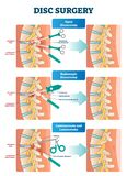 Disc surgery vector illustration. Diagram with back nerves and bones pain. Disc surgery vector illustration. Medical labeled diagram with back pain from vector illustration