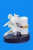 Disco espinal Imagem de Stock