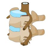Disco espinal da vértebra Fotografia de Stock Royalty Free