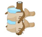Disco espinal de la vértebra Fotografía de archivo libre de regalías