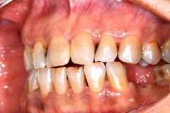 Discoloured teeth. And mucosa result of smoking stock image
