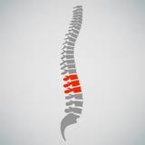 Diseño del símbolo de los diagnósticos de la espina dorsal fotografía de archivo libre de regalías