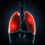 Disease illustration of human lungs. Royalty Free Stock Photography