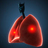 Disease illustration of human lungs. Royalty Free Stock Photos