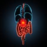 Disease illustration of human stomach Stock Photo