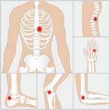 Disease of the joints and bones. royalty free illustration