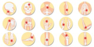 Disease of the joints and bones icon set on white background vector illustration