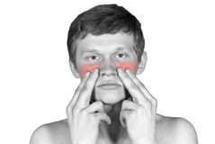 Disease of the nose Royalty Free Stock Image