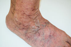 Disease varicose veins Royalty Free Stock Images