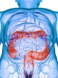 A diseased colon. 3d rendered medically accurate illustration of a diseased colon stock illustration
