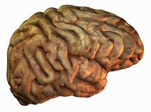 Diseased human brain Royalty Free Stock Photos