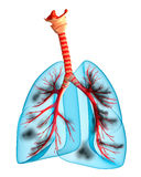 Diseased lungs. Over white , 3D Stock Photo
