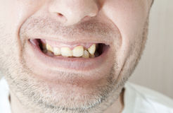 Diseased teeth of the patient. Tartar and tooth decay Royalty Free Stock Photos