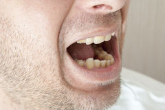 Diseased teeth of the patient Stock Images