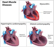 Diseases of heart muscle. 3 different diseases of heart muscle, eps8 Stock Photos