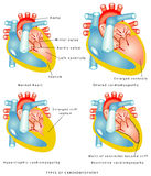 Diseases of the Heart Muscle. Types of cardiomyopathy: the walls of the ventricles thicken and become stiff; the left ventricle is enlarged and weakened; the Royalty Free Stock Photo