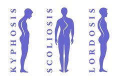 Diseases of the spine. Scoliosis, lordosis, kyphosis. Body posture defect. Human silhouettes on white. Vector illustratio royalty free stock photography