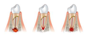 Diseases of teeth dental scheme. Periodontitis Royalty Free Stock Image