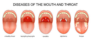 DISEASES OF THE THROAT Royalty Free Stock Image