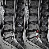 Diskettherniation, lumbal rygg MRI Fotografering för Bildbyråer