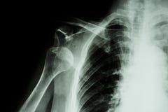 Dislocation antérieure d'épaule de rayon X images libres de droits