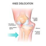Dislocazione del ginocchio illustrazione vettoriale