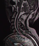 Dislplay error, MRI. Overlapping error during MR examination of the cervical spinal cord with overlapping of the image. Error in shape and colors Stock Photos