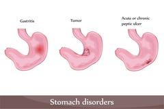 Disordini dello stomaco Fotografie Stock