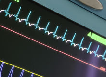 Display with ECG-curve Royalty Free Stock Photography
