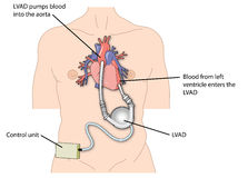 Dispositif d'aide ventriculaire gauche (LVAD) Photos libres de droits